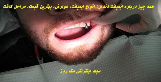 همه چیز درباره ایمپلنت دندان؛ انواع ایمپلنت، عوارض، بهترین قیمت، مراحل کاشت - مجله اینترنتی مگ روز
