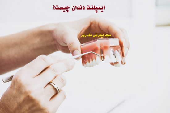ایمپلنت دندان چیست و از چی ساخته شده است؟