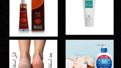 تصویر از خرید کرم ترک پا ؛همه نکات مهم برای از بین بردن ترکهای پا | مگ روز